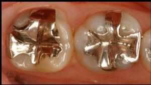 むし歯カリエスのある銀歯インレー