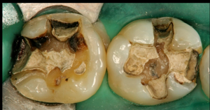 銀歯インレー内面のむし歯カリエス
