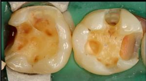 むし歯カリエスを除去した歯の象牙質